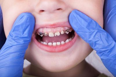 Лечение кариеса молочных зубов в Крыму
