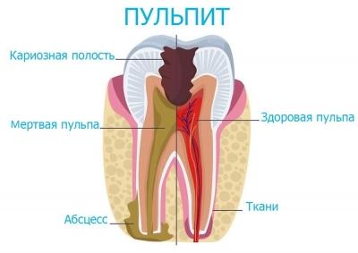 Лечение пульпита в Феодосии