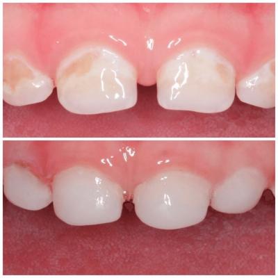 Реставрация молочных зубов в Феодосии