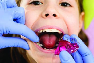 Исправление прикуса съемной ортодонтической пластинкой