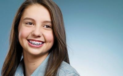Профгигиена зубов для детей в Феодосии