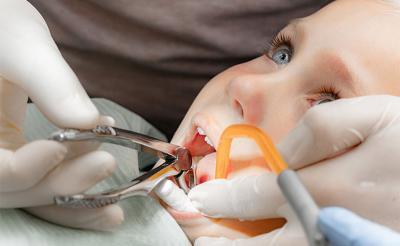 Хирургическая стоматология в Феодосии